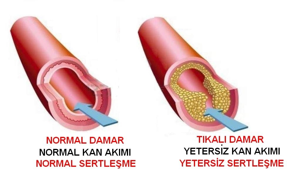 ketamin siparis ver